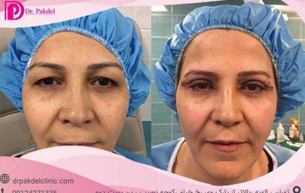 What is blepharoplasty? Eyelid cosmetic surgery | Eyelid puffiness