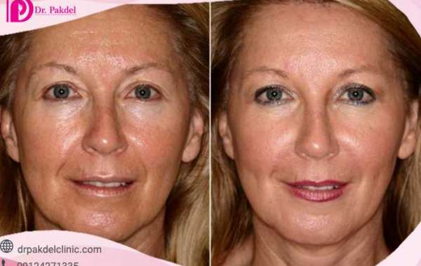 What is mesotherapy and what are its uses?