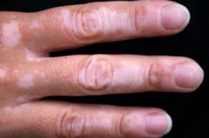 Vitiligo Treatment Cost in Delhi