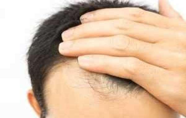 Hair Fall Treatment Doctor in Delhi