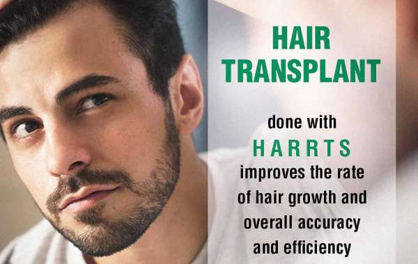 Hair Transplant Cost in Hyderabad