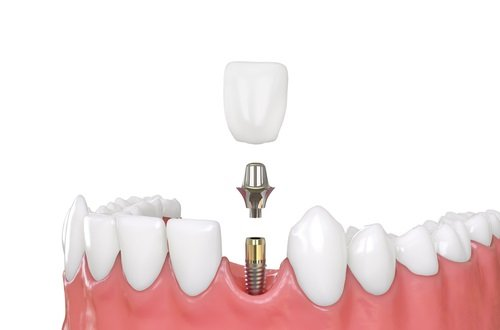 Why Should You Think About Dental Implants?   Dental Implant Center