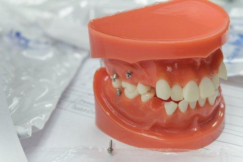 Get the Best Mini Dental Implants in Charleston, South Carolina